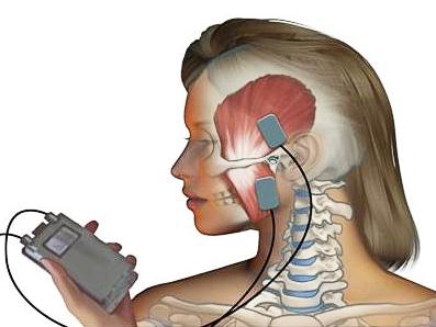 elektrotherapie- tens-prinzip